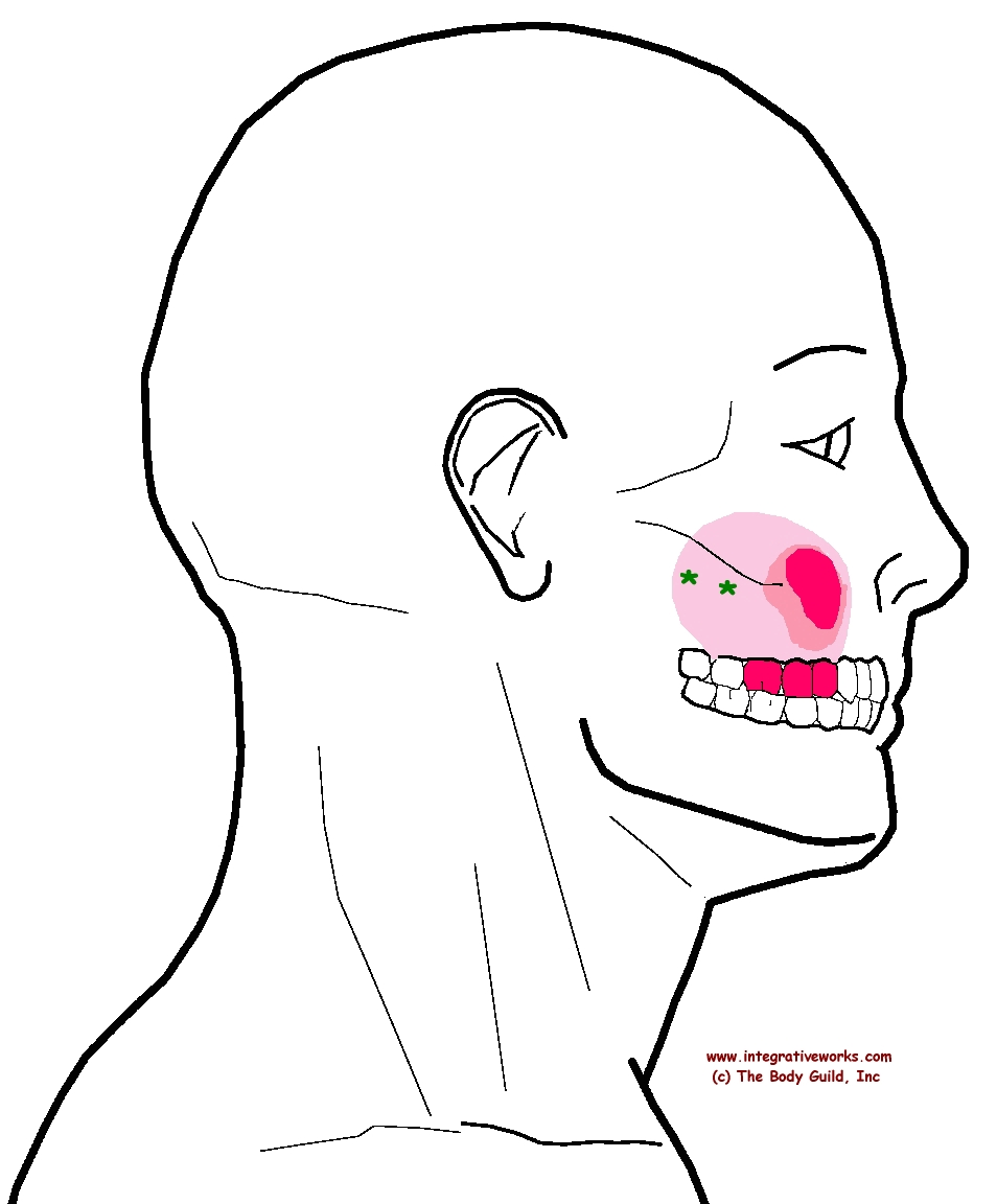 Trigger Point Referral Pattern Of The Superficial Masseter