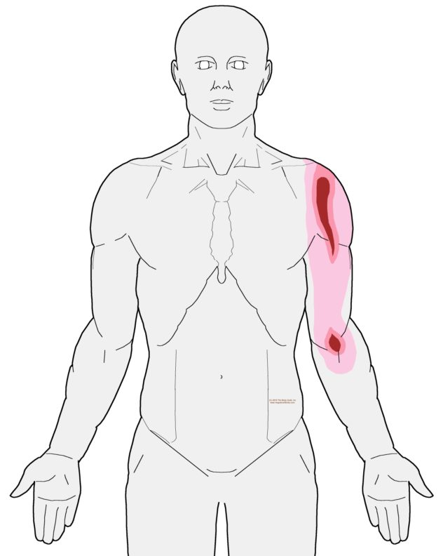 referral-biceps-brachii-anterior-cropped