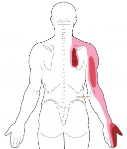 referral - scalene - posterior1